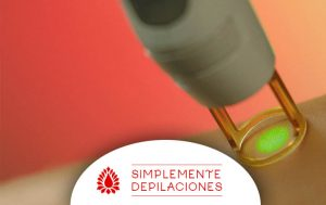 depilación alejandrita